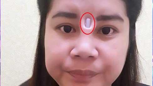 Nâng mũi giá rẻ, cô gái bị miếng silicone lòi hẳn ngoài sống mũi, nhô ra giữa hai mắt