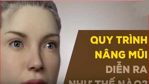 Quy trình nâng mũi diễn ra như thế nào?