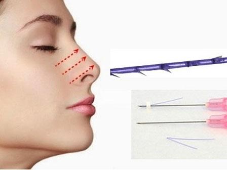Hiểm họa khôn lường từ phương pháp nâng mũi nhiều chị em ưa chuộng