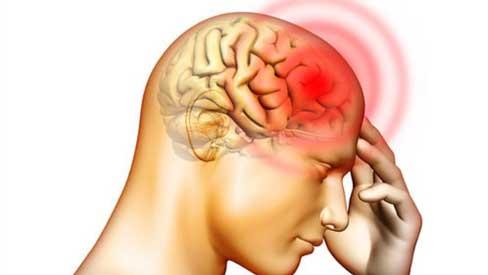 Bài tập giúp MÁU THÔNG LÊN NÃO, chữa đau đầu cực hiệu quả