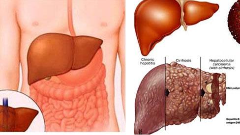 Chuyên gia tư vấn cách xử trí khi gan bị nhiễm độc