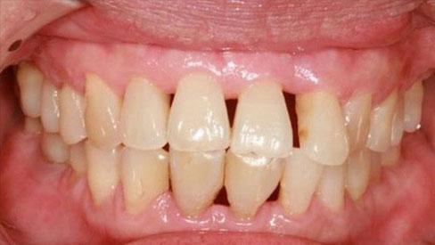 Có thể bị ung thư phổi, ung thư đại tràng vì vệ sinh răng miệng kém