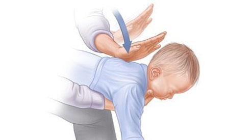 Tết đến rồi, hãy dành 1 phút học cách sơ cứu trẻ nếu con bị hóc dị vật