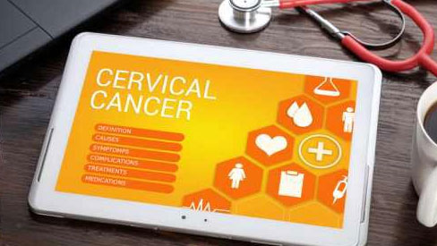 8 yếu tố có nguy cơ gây ung thư cổ tử cung phụ nữ cần biết