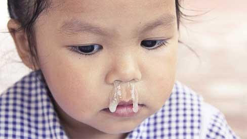 Bác sĩ cảnh báo về cách chữa sổ mũi bằng tỏi ngâm nước muối sinh lý