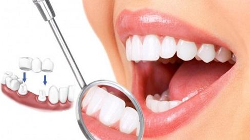 Bác sĩ cảnh báo trước mối nguy hiểm của dịch vụ bọc răng sứ thẩm mỹ
