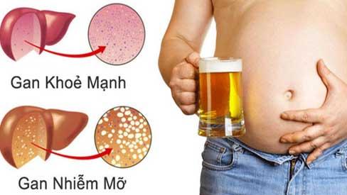 Ngoài rượu bia còn 5 thói quen phá huỷ gan nhanh không kém