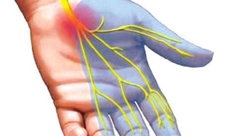 4 dấu hiệu sớm của bệnh cục máu đông - thủ phạm chính gây đột quỵ, đột tử