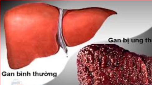 Ung thư gan -  7 dấu hiệu cảnh báo