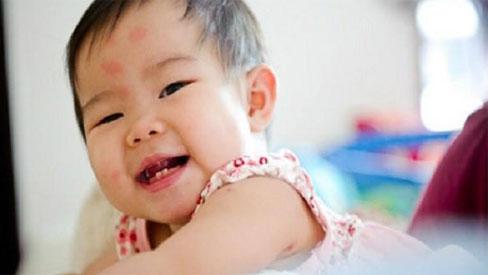 Mách cha mẹ cách trị vết muỗi đốt đơn giản cho trẻ em