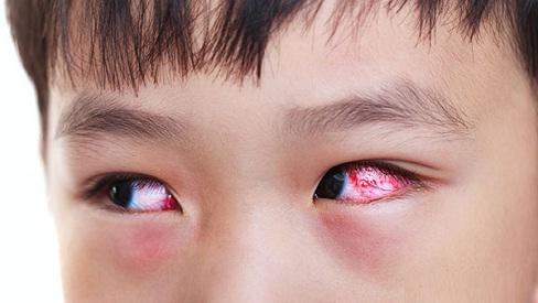 Những bài thuốc y học cổ truyền chữa đau mắt đỏ