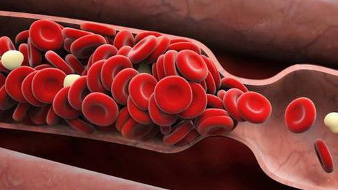 Chuyên gia chỉ 6 dấu hiệu cảnh báo cục máu đông