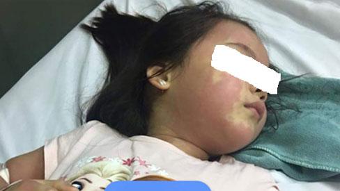 Bé gái 5 tuổi nổi mẩn khắp người sau khi uống trà sữa