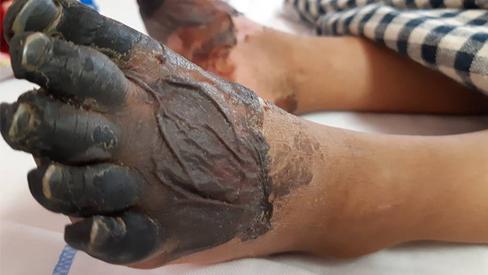 Bác sĩ trả lời thông tin bé gái ở Lai Châu bị hoại tử chân tay do mắc bệnh Than hiếm gặp