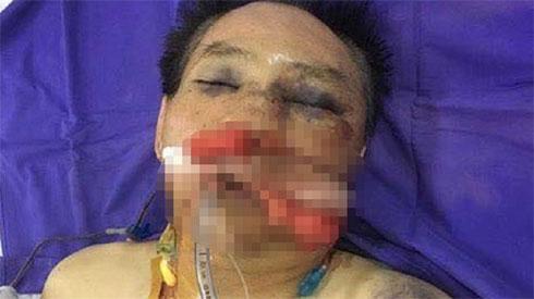 Nguyên đại tá công an đánh vợ chồng anh trai dập phổi