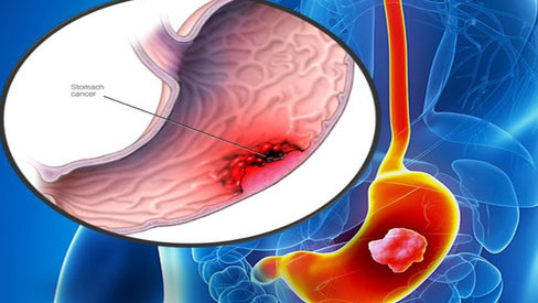 Chuyên gia khuyến cáo thủ phạm có thể gây ung thư dạ dày người Việt hay mắc