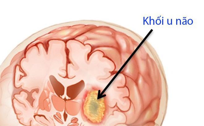 U não là nguyên nhân gây tử vong rất cao: Chuyên gia chỉ những dấu hiệu