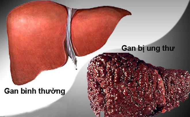 3 nhóm người có nguy cơ mắc ung thư gan cao nhất: Đừng để phát hiện khi ở giai đoạn muộn