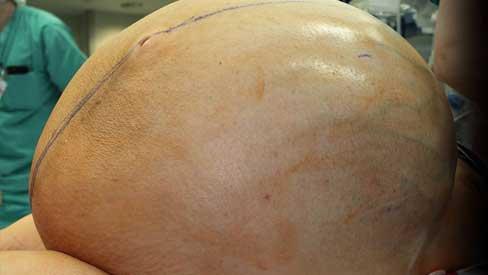 Người phụ nữ mang khối u buồng trứng 60kg