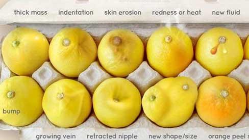 Nhờ vào bức ảnh 12 quả chanh, người phụ nữ bất ngờ phát hiện bị ung thư vú
