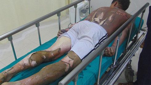 Dại dột rót xăng ở gần lửa, người đàn ông bỏng nặng lột da toàn thân