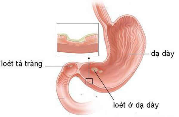 Chữa đau dạ dày từ phương pháp tự nhiên