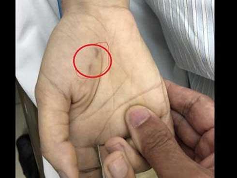 Nữ bác sĩ thú y tử vong sau gần 2 tháng bị chó cắn vào tay