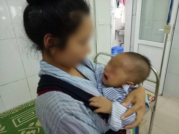 Mẹ vắt sữa chữa đỏ mắt cho con, bé trai 7 tháng tuổi phải bỏ một mắt vì hoại tử-1