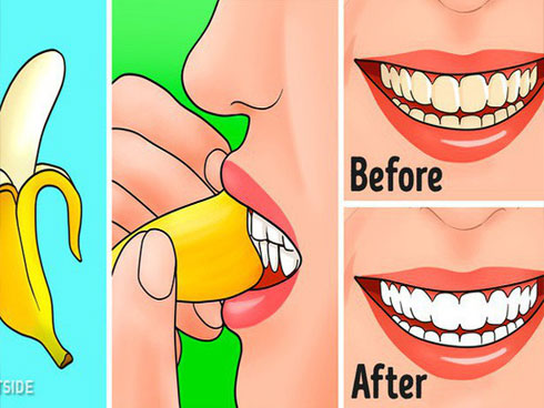 Ăn chuối hàng ngày nhưng ít người biết 7 công dụng từ vỏ chuối: Nhớ đừng vứt vào thùng rác