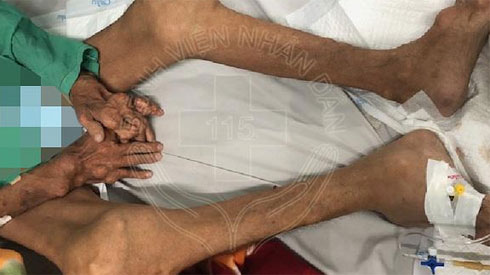 Tự ý uống thuốc giảm đau nhiều năm, người đàn ông nhập viện vì tay, chân biến dạng