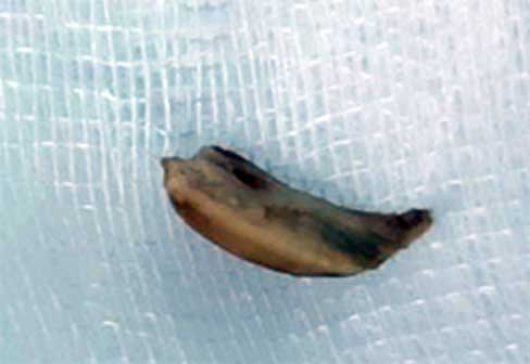 Bác sĩ dùng rọ bẫy hạt sen hóc trong phế quản cụ bà