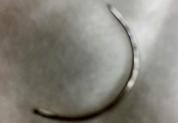Cây kim khâu thất lạc trong vùng kín sản phụ-1