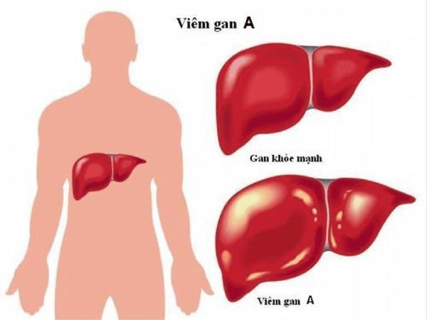 Chết vì nhiễm viêm gan A do ăn lựu đông lạnh: cảnh giác loạt bệnh dễ lây qua ăn uống-2