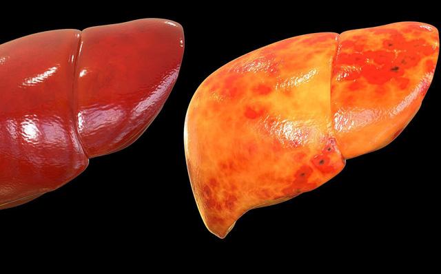 Cách loại bỏ mỡ thừa nhanh, phòng bệnh gan nhiễm mỡ chỉ trong 1 tháng: Ai cũng nên áp dụng-1
