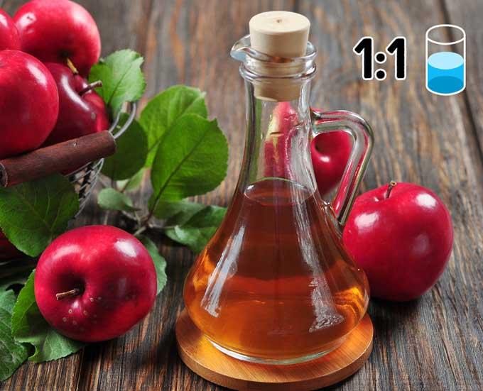 7 mẹo trị gàu với nguyên liệu thiên nhiên ít tốn kém-2