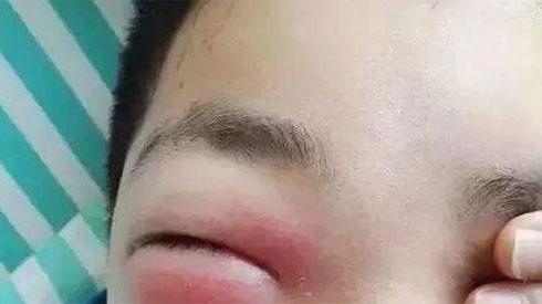 Cậu bé 11 tuổi mắt sưng như trứng, suýt mù vì bố mẹ cho nghịch điện thoại suốt 2 ngày