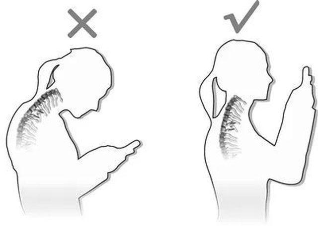 Nhìn phim chụp X-quang cổ của con, mẹ hối hận tột cùng khi trót để con sớm chơi thứ này-3