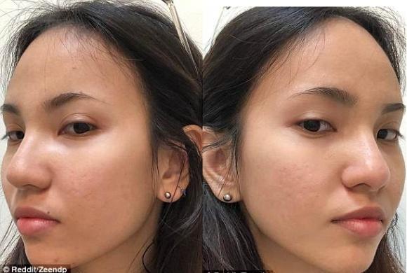 Tuyệt chiêu trị mụn của cô gái Việt được khen ngợi hết lời trên báo nước ngoài-3