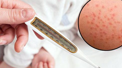 Cách phân biệt sốt phát ban ở trẻ và bệnh sởi mẹ nào cũng nên nắm