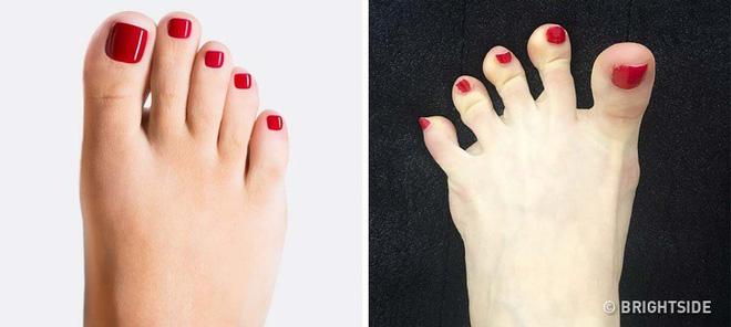 Chuyên gia khuyên bạn nhìn ngay xuống bàn chân soi dấu hiệu bệnh tật cư trú trong người-10