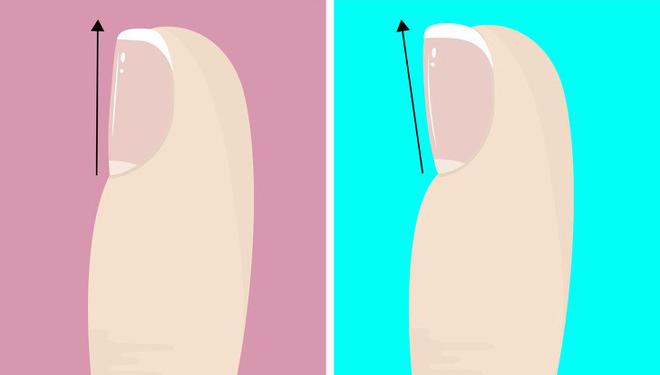 Chuyên gia khuyên bạn nhìn ngay xuống bàn chân soi dấu hiệu bệnh tật cư trú trong người-2