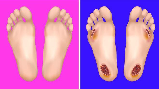 Chuyên gia khuyên bạn nhìn ngay xuống bàn chân soi dấu hiệu bệnh tật cư trú trong người-3