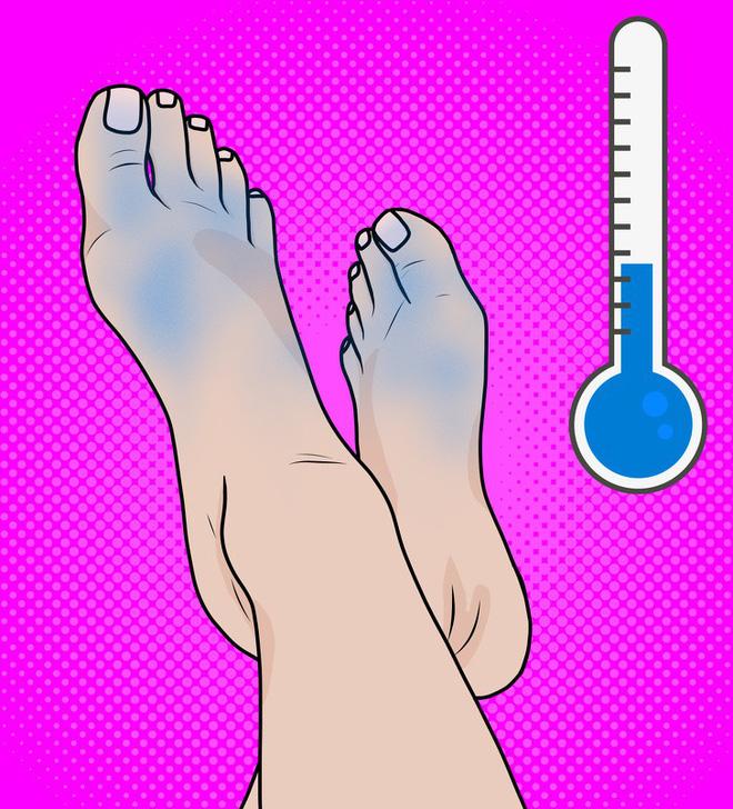 Chuyên gia khuyên bạn nhìn ngay xuống bàn chân soi dấu hiệu bệnh tật cư trú trong người-4