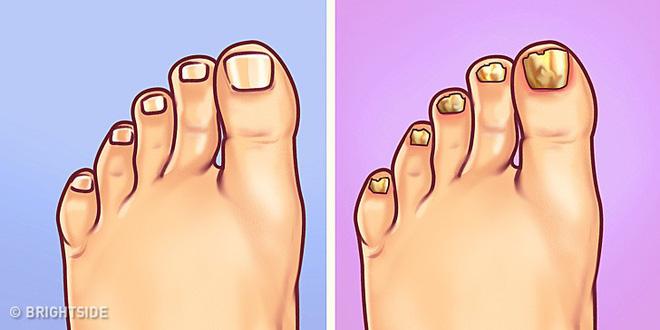 Chuyên gia khuyên bạn nhìn ngay xuống bàn chân soi dấu hiệu bệnh tật cư trú trong người-5