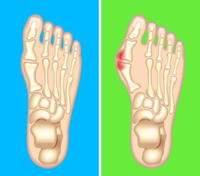 Chuyên gia khuyên bạn nhìn ngay xuống bàn chân soi dấu hiệu bệnh tật cư trú trong người-7