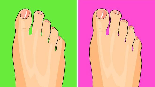 Chuyên gia khuyên bạn nhìn ngay xuống bàn chân soi dấu hiệu bệnh tật cư trú trong người-8
