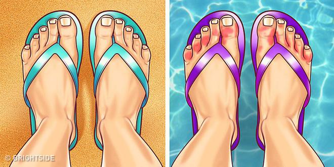 Chuyên gia khuyên bạn nhìn ngay xuống bàn chân soi dấu hiệu bệnh tật cư trú trong người-9
