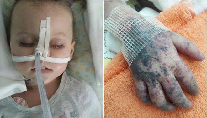 Không tiêm phòng sởi, bé 2 tuổi qua đời trước sự chứng kiến đau lòng của người mẹ-3