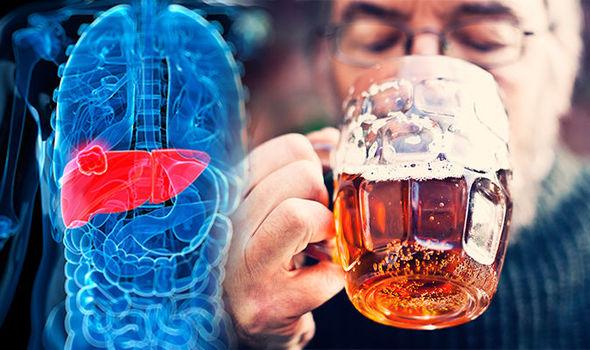 Các dấu hiệu cảnh báo gan tổn thương do uống rượu quá mức, tuyệt đối không được xem thường-1