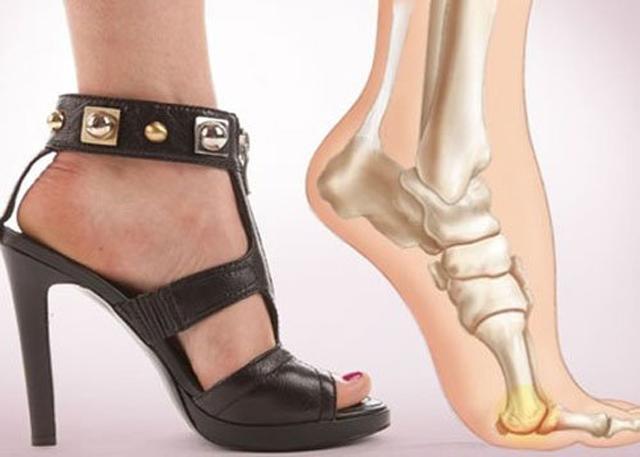 Đang đi đột nhiên ngất xỉu, bác sĩ tuyên bố thủ phạm chính là đôi giày cao gót-3